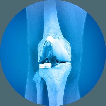 Dr  Khalid Yousuf Dallas, TX | Orthopaedic Surgery Plano
